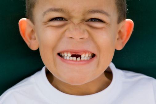 Kết quả hình ảnh cho Mơ thấy gãy răng